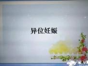 """成飞医院2019年第一期""""健康管理学校"""""""" 异位妊娠""""开讲啦"""