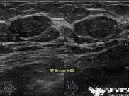 成飞医院超声技术介绍之——乳腺超声